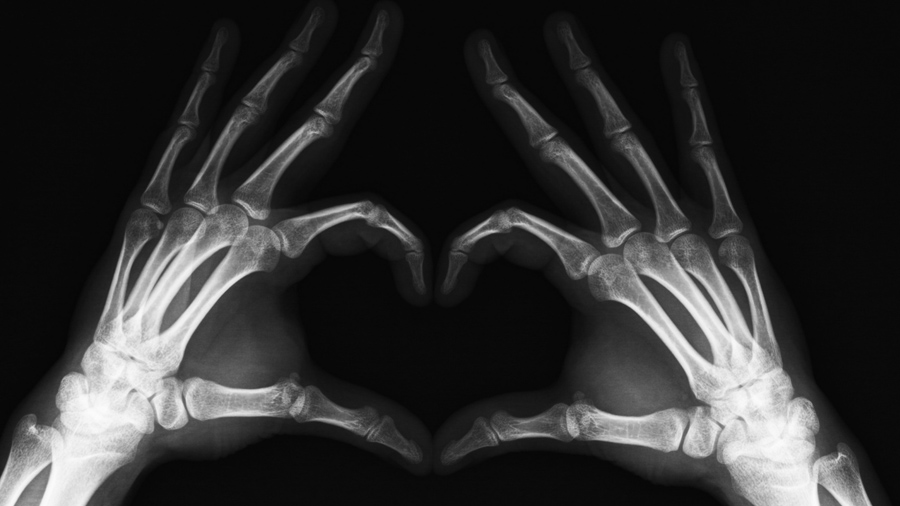 Maconha pode ajudar a tratar fraturas, diz estudo
